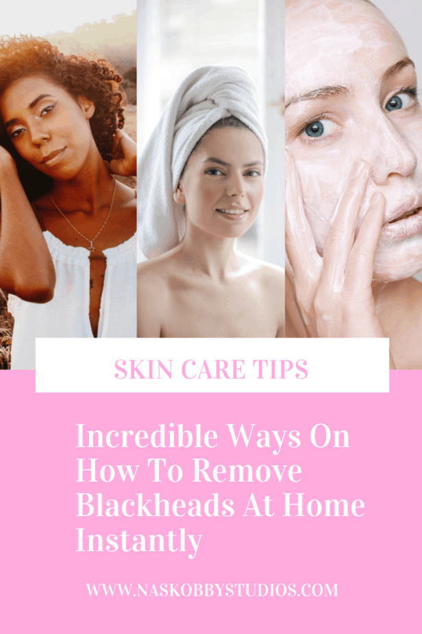 Incredible Ways On How To Remove Blackheads At Home Instantly