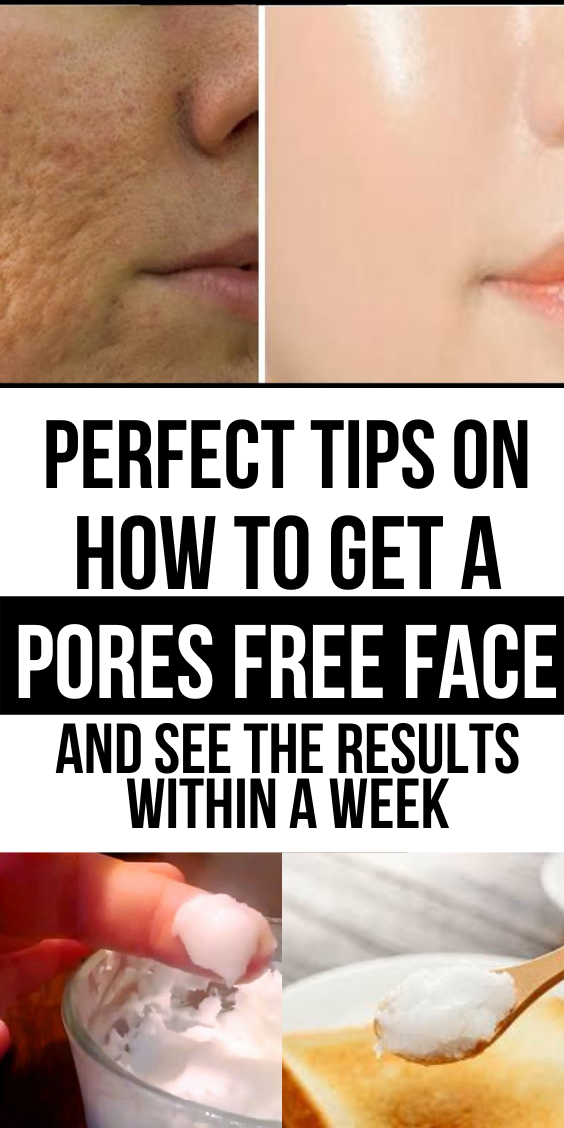 These Homemade Tips Will Let You Know How To Minimize Pores On Face In No Time